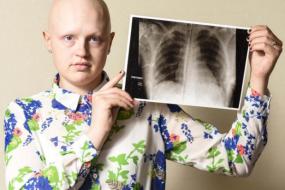 【误诊】医生搪塞10次,罕见癌症患者被误诊:那只是块肌肉